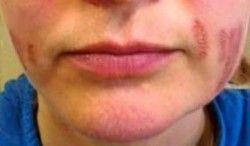 Fibroblast Facial Injury Burns and Scarring -  Client B second image