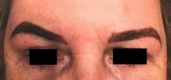 Semi Permanent Makeup Brow Injury - Client E